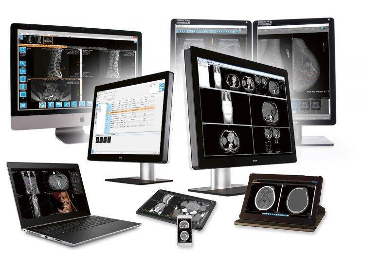 Lợi ích của hệ thống PACS đối với Bệnh viện, Phòng khám