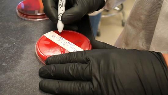 Mỹ lần đầu phát hiện loại siêu khuẩn kháng mọi loại thuốc