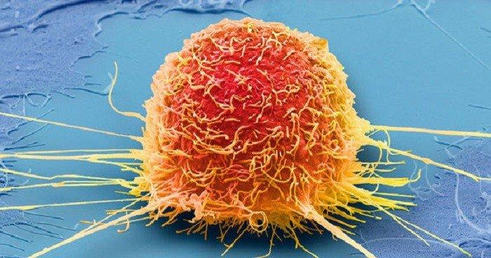 Hệ thống giúp giảm áp lực cho các bác sĩ khi phân loại khối u